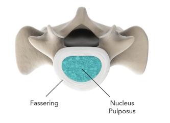 LWS-Querschnitt-Wirbelsaeule-spinal-kinetics.jpg